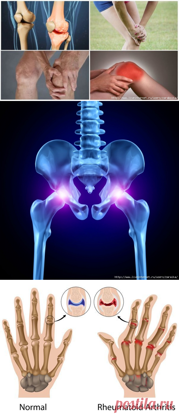 при артрите - Самое интересное в блогах