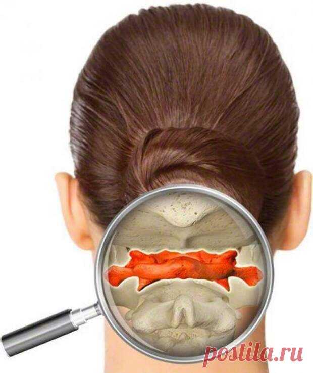 Техника, которая поможет избавиться от головной боли - Народная медицина - медиаплатформа МирТесен Верхний шейный отдел позоночника довольно часто повреждается при нырках, падениях, травмах, в спорте и т.д. Нарушение функций атланта (верхнего шейного позвонка) отрицательно влияет на головной мозг, блуждающий нерв и сердце, суставную систему. Как скорректировать атлант? Остеопатия представляет