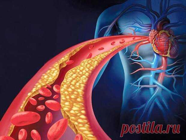 Как почистить закупоренные артерии с помощью питания... - медиаплатформа МирТесен Кровеносные сосуды являются основой кровеносной системы, переносят кровь от сердца к внутренним органам, головному мозгу человека. Их состояние влияет на показатели артериального давления и общее самочувствие. При ухудшении кровотока ткани перестают получать кислород и питательные вещества,