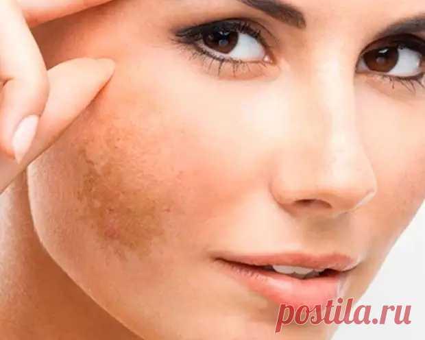 О каких болезнях расскажут пигментные пятна на лице - Народная медицина - медиаплатформа МирТесен