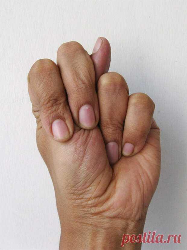 Серия - целительные мудры. - Советы Народной Мудрости - медиаплатформа МирТесен Целительные мудры Тело человека состоит из 5 элементов. Огонь, Земля, Вода, Воздух и Эфир (пространство). Наши пальцы представляют эти элементы. Например, указательный палец представляют элемент воздуха, а средние пальцы представляют собой элемент пространства. .Соединив пальцы в различных