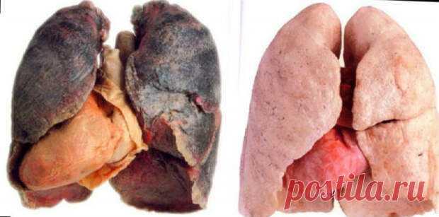 Описанный в статье способ оздоровления легких поможет спасти их, даже если вы курите 5 лет и дольше. В этом случае не поленитесь и обязательно пройдите курс! Следует заметить, что рецепт актуален не только для курильщиков, потому как жители мегаполисов тоже часто страдают от заболеваний органов