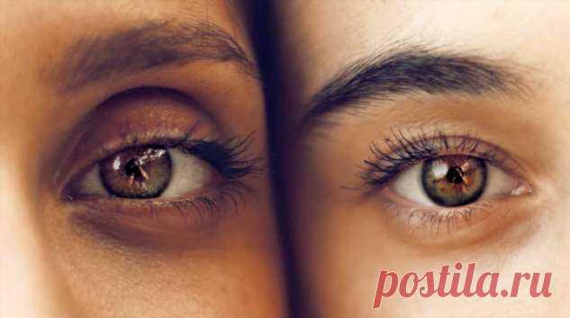 Тест Амслера поможет вовремя выявить заболевание глаз и сохранить зрение   Люблю Себя