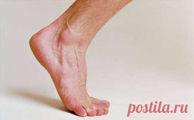 Почему немеют конечности и что такое парестезия?   Офигенная