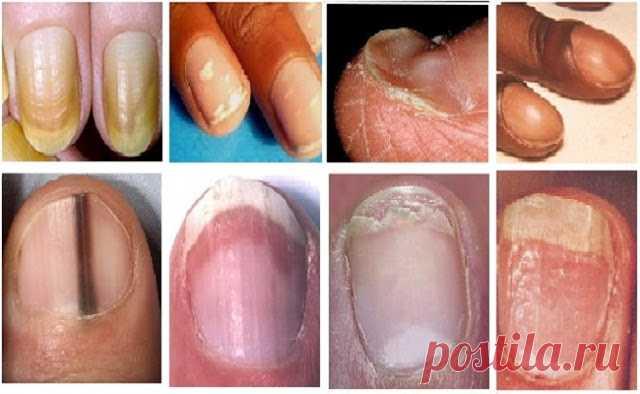 Что могут рассказать о здоровье нарушения ногтевой пластины? — 🍎 Сад Заготовки