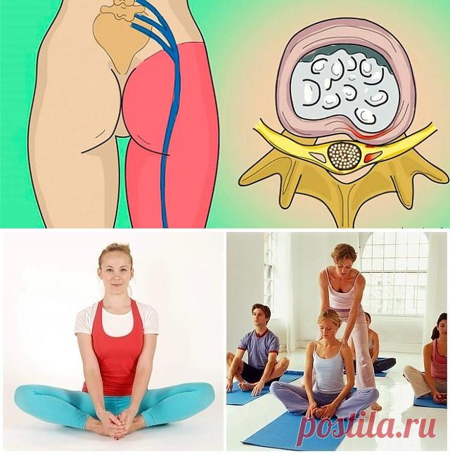Седалищный нерв — один из самых длинных и самых важных в нашем организме. Он начинается в нижней части позвоночника и ведет дальше к бедрам, коленям и пяткам. А отдельные его ветки тянутся даже к пальцам рук.Если седалищный нерв передавить, это может вызвать сильную боль в спине или в задней поверхности бедра. Наиболее часто эта проблема встречается у людей в возрасте от 35 до 50 лет.Хуже всего, когда боль в нижней части спины сопровождается хронической усталостью и болью ...