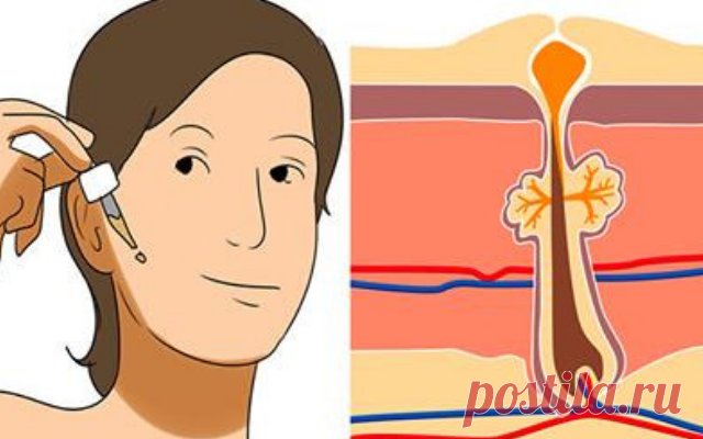 Эти 4 супер сильных средств сделают вашу кожу упругой, устранят морщины и воспаление!