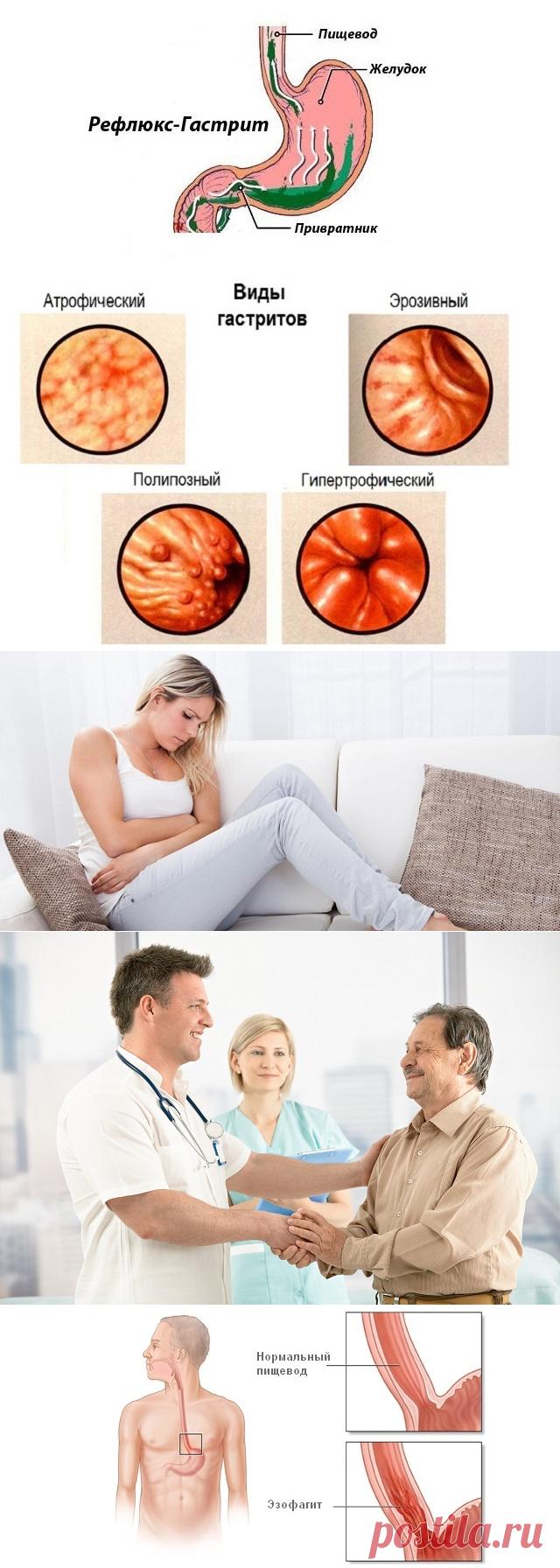 Кандидозный эзофагит симптомы и лечение