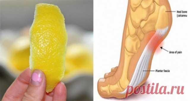 Кожура лимона может удалить боли в суставах навсегда! 2 мега способа! — Копилочка полезных советов