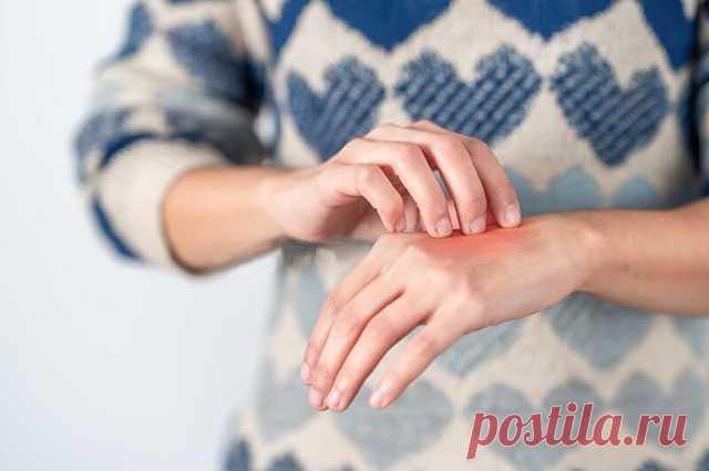 Народная медицина и атопический дерматит — СОВЕТ !!!