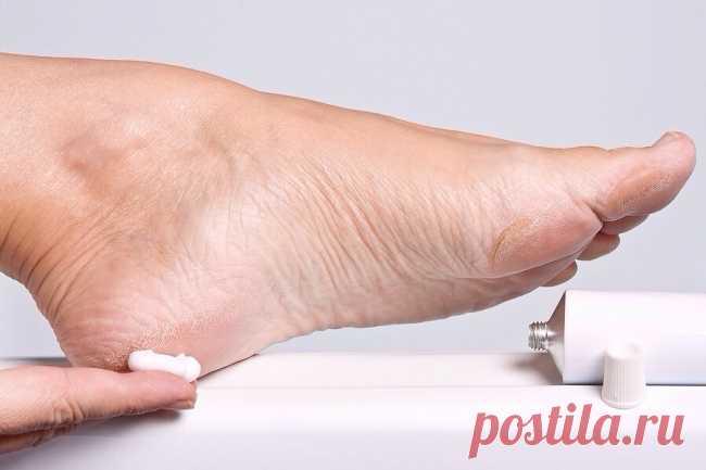Как просто избавиться от потрескавшихся пяток! Ваши ноги достойны босоножек! Эффективный домашний рецепт!