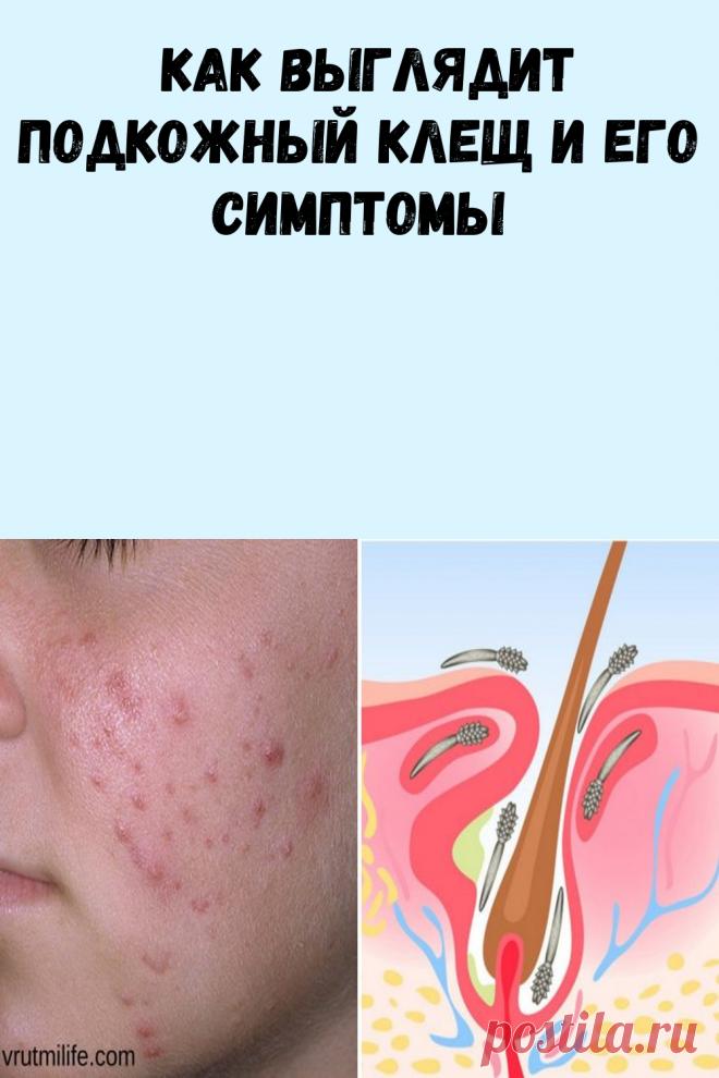 Как выглядит подкожный клещ и его симптомы