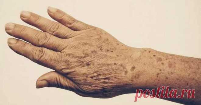 Пятна и морщины на руках: 5 средств для 100% устранения Устраните пятна и морщины на руках и вы будете выглядеть моложе на 10-15 лет!