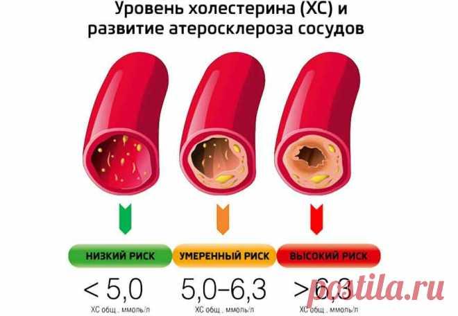 Норма холестерина в крови: каким должен быть анализ | Здоровье вашего организма | Яндекс Дзен