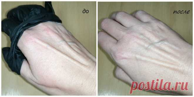 Резиновые перчатки привели к раздражению, рассказываю, как удалось восстановить руки