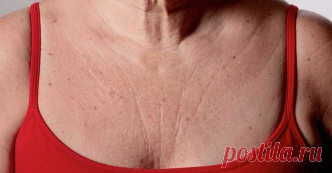 Эти 3 супер средства быстро устранят морщины на груди и шее - вы будете чувствовать себя намного моложе!! - Страница 2 из 2 1. Маска для яиц, огурца и кокосового масла Применяйте эту маску один раз в неделю. Этого достаточно, чтобы за короткое время вы увидели прекрасную трансформацию. Это связано с различными питательными веществами яичного желтка и невероятной антиоксидантной способностью огурца и кокосового масла. Ингредиенты: 1 огурец (свежий или замороженный) 1 яичный...