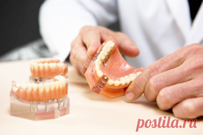 10 вопросов к стоматологу о протезировании зубов | Стоматология ROOTT | Яндекс Дзен