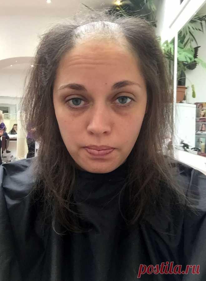 «До свадьбы отрастет». Врачам удалось восстановить волосы облысевшей девушке ко дню ее свадьбы . Милая Я