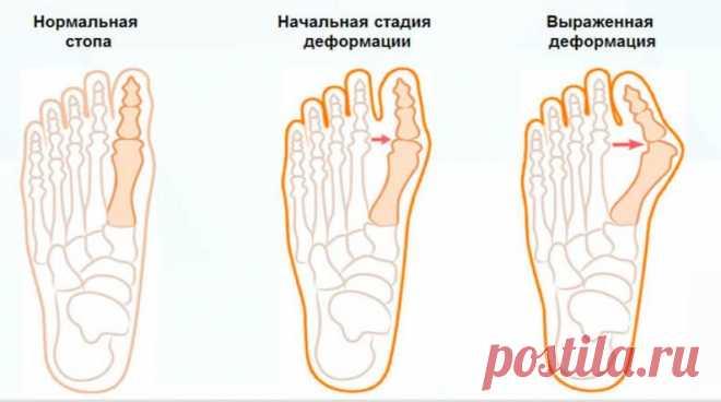 Как избавиться от шишки на пальце ноги | Делимся советами