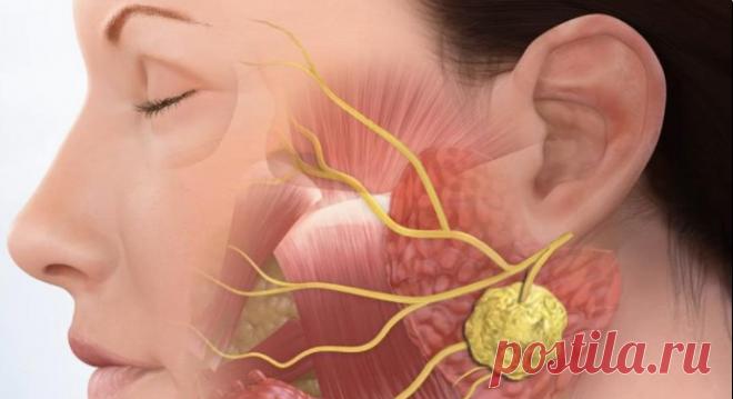 Причины, почему опухают лимфатические узлы Рассмотрим одни из возможных причин.