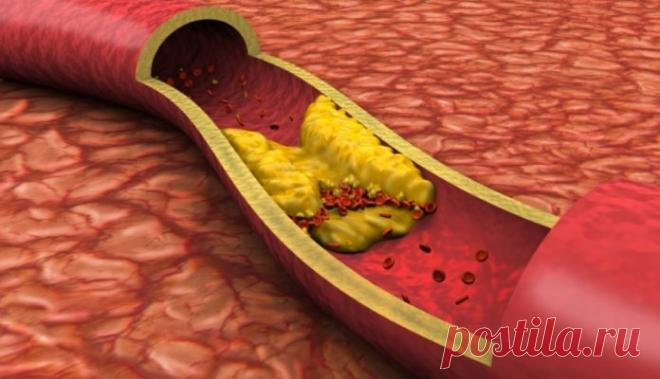 Простой напиток, который может помочь очистить артерии естественным способом