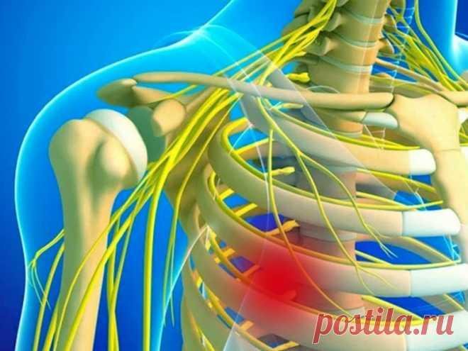 Как распознать межрёберную невралгию Сильная боль в груди не всегда связана с сердечным приступом или инфарктом миокарда. Подобные симптомы характерны для межреберной невралгии – заболевания, обусловленного воспалением или спазмом нервных окончаний между ребрами.