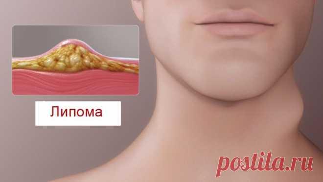 Липома (жировик): причины, симптомы и методы лечения