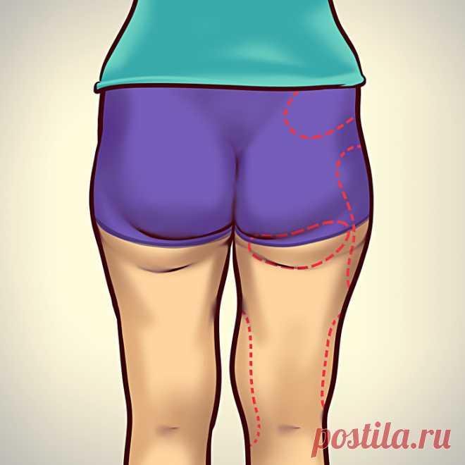 Как обмануть гормоны, вызывающие ожирение - Советы и Рецепты Кроме малоподвижного образа жизни и сладостей в увеличении веса могут быть виноваты и гормоны. Если вы сидите на белковой диете более месяца и ваш вес остается неизменным или даже растет, это может быть связано с повышенным уровнем эстрогена. Рассказываем о гормонах, которые могут помешать вам на пути к телу вашей мечты. 1. Избыток эстрогена При …