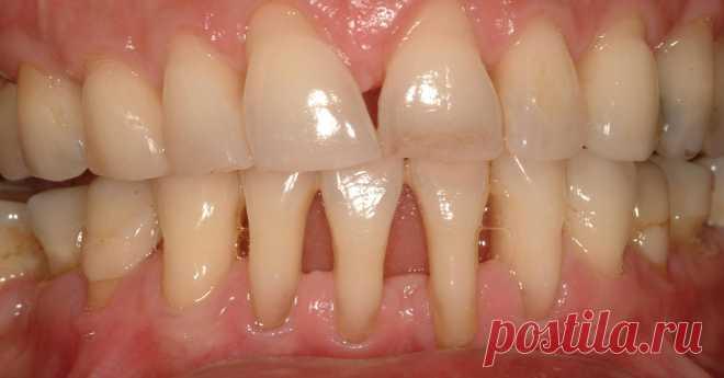 Вы заметили оголение шейки или корня зуба? Немедленно начинайте лечение — 6 натуральных рецептов! - Образованная Сова