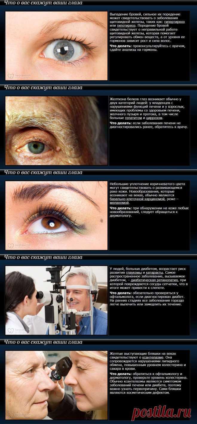 О каких заболеваниях могут сказать ваши глаза?.