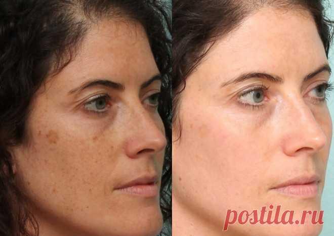 Американский доктор делится секретом: простой трюк, который устранит пигментные пятна на коже! - Счастливые заметки