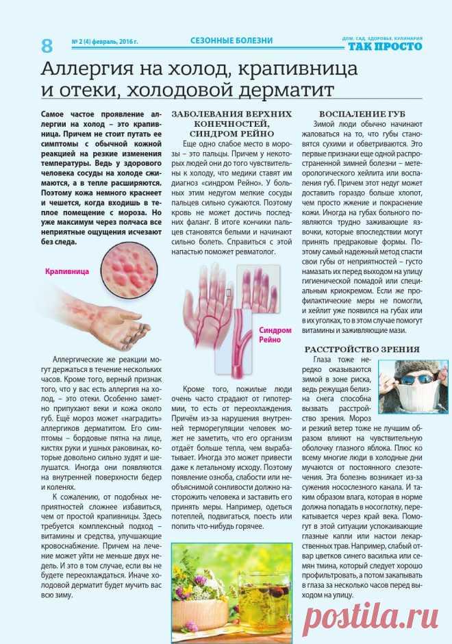 Аллергия на холод, крапивница и отеки, холодовой дерматит