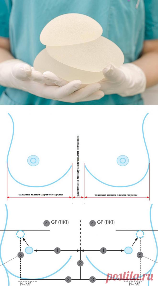 Как пластический хирург выбирает грудные имплантаты?