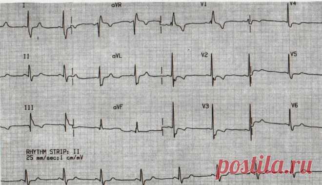 Как расшифровать кардиограмму сердца самостоятельно в домашних условиях: нормы у мужчин, женщин и детей по возрасту, таблица Что следует знать, что бы верно расшифровать кардиограмму сердца самостоятельно в домашних условиях. Каковы нормы у мужчин, женщин и детей по возрасту. В каких случаях ЭКГ может быть не точным. Как распознать патологию, признаки.