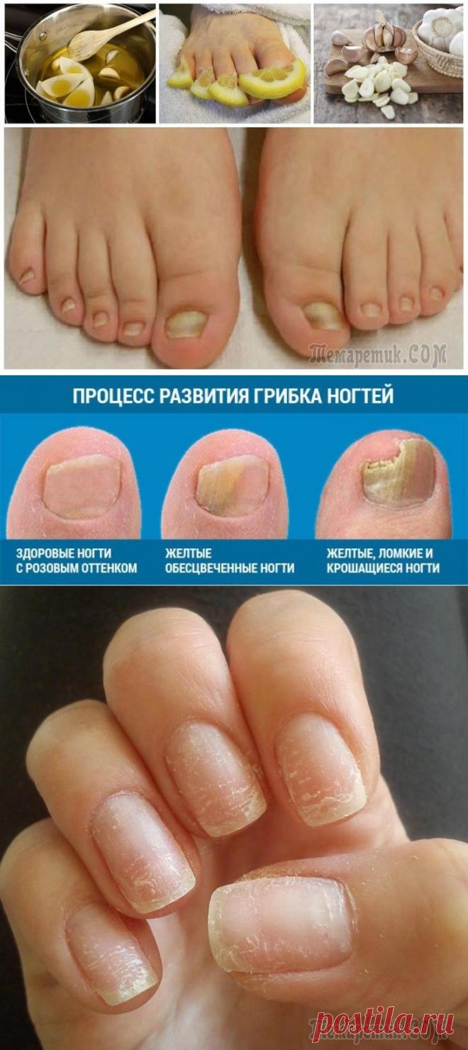 ломкие ногти на ногах причины лечение