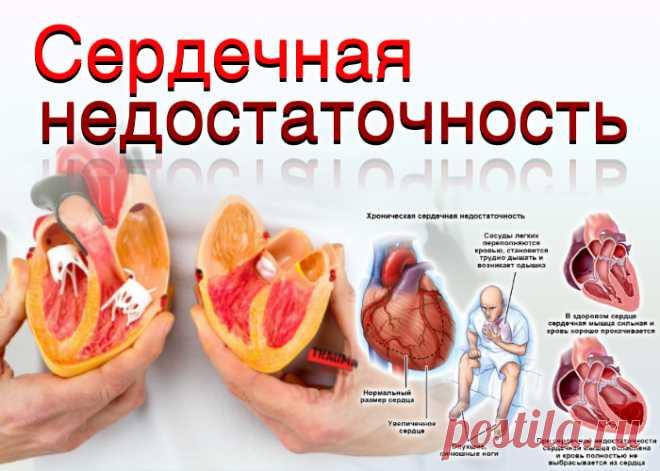 doclvs.ru | Сердечная недостаточность