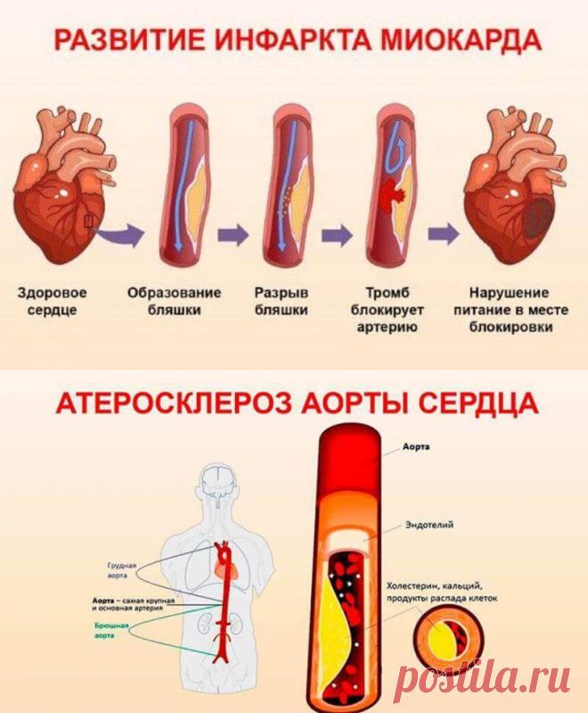 Почему чистка сосудов в зрелом возрасте – средство выживания, а не роскошь? Чем грозят холестериновые бляшки? Накопление холестерина на стенках сосудов активно начинается после 40 лет, а после 50-ти принимает лавинообразную скорость. Возникающие «холестериновые» преграды ухудшают кровоток. Постепенно образовывается атеросклеротическая бляшка, а диаметр сосуда становится все меньше. Это многократно увеличивает риск закупорки сосуда тромбом. ᅠᅠᅠᅠᅠᅠᅠᅠᅠᅠᅠᅠᅠᅠᅠᅠᅠᅠᅠᅠᅠᅠᅠ | домашний майонез