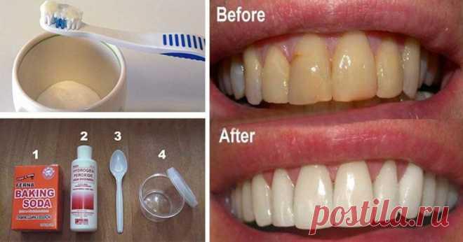 Как избавиться от зубного налета и отбелить зубы без дорогостоящих процедур! Попробуйте и вскоре вы будете наслаждаться голливудской улыбкой!