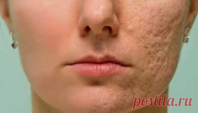 Нанесите это на шрамы, морщины или пятна на коже и наслаждайтесь, тем как быстро все будет исчезать! Даже врачи шокированы! Все мечтают о светлой и чистой коже. Существует множество продуктов и методов лечения, которые часто не работают. Тем не менее, вместо этого, вы можете улучшить состояние кожи легкой естественной смесью, которая может устранить морщины, пятна и шрамы с вашего лица. Основным компонентом этого средства является мед, который улучшить состояние кожи, кром...