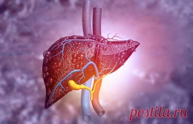 Все о циррозе, или что важно знать о здоровье печени — ЗдоровьеИнфо Что важно знать о печени и факторах, влияющих на нее, чтобы избежать этого смертельно опасного заболевания?