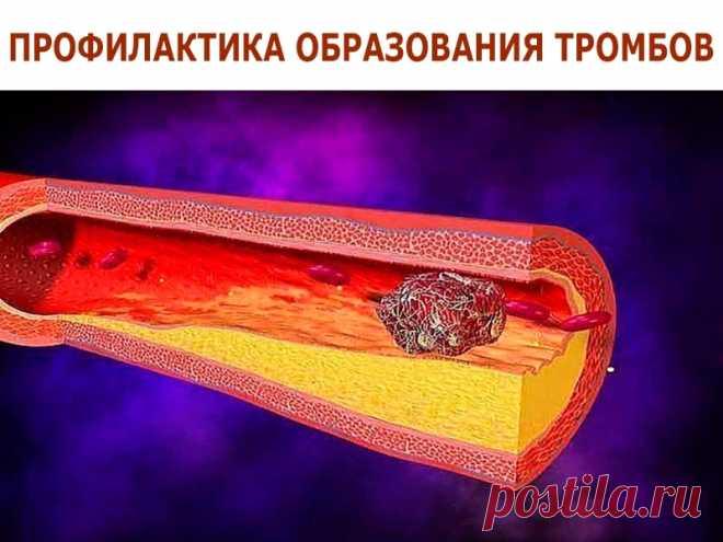 аулова профилактика образования тромбов картинки фотографии получаются даже