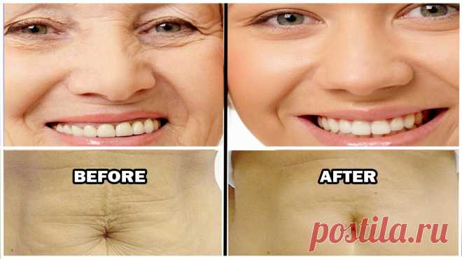 Как подтянуть кожу естественно - Полезные советы красоты