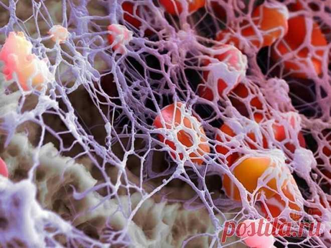Фибриноген: повышенный и низкий уровень, способы улучшения