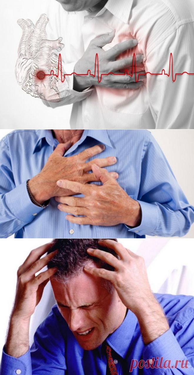фото инфарктов и инсультов каталоге