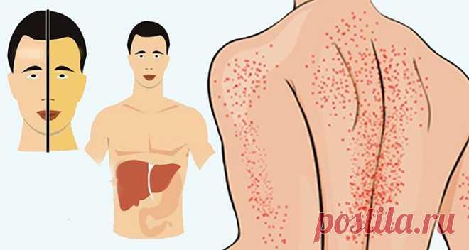 12 способов, как ваше тело пытается сказать вам, что ваша печень повреждена! - Советы для тебя