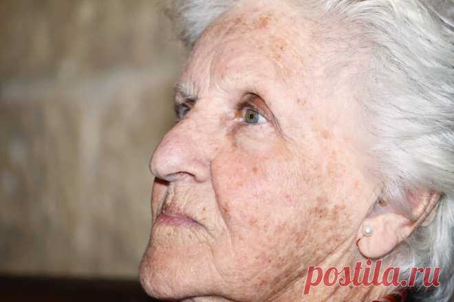 Как избавиться от старческих пигментных пятен на лице в домашних условиях | Рекомендательная система Пульс Mail.ru
