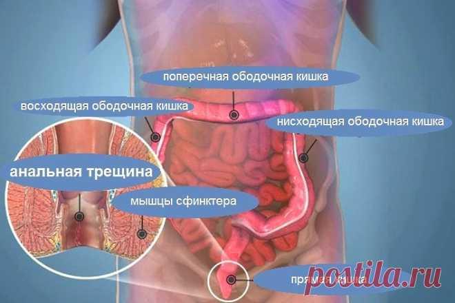 analniy-prolaps-i-gepping-foto