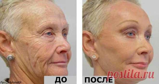 Ей 64 года, но все завидуют ее лицу без морщин! Ее тайна - один-единственный ингредиент!  Молодильные яблоки уже не нужны :)