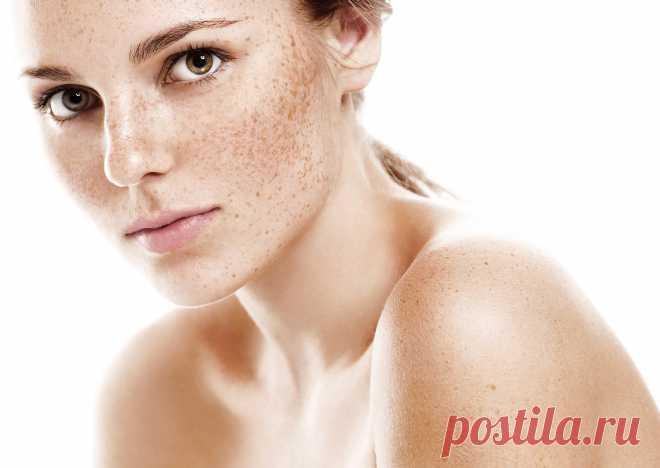 Пигментные пятна на теле и лице: почему появляются и как от них избавиться