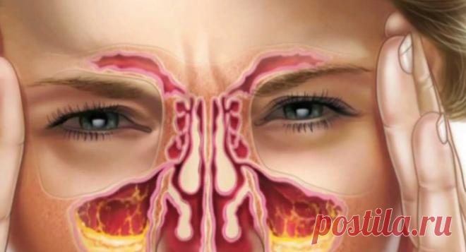 Народные средства от инфекций носовых пазух / Будьте здоровы